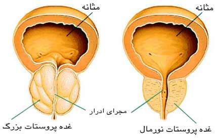 prostat01